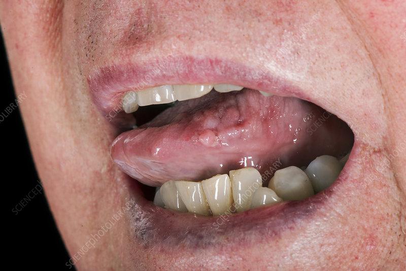 hpv warts back of tongue