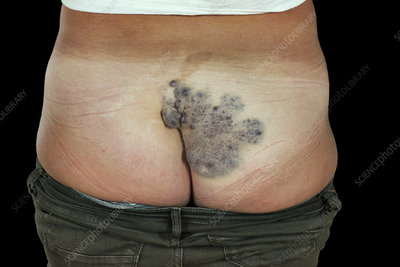 Venous malformations on the buttocks