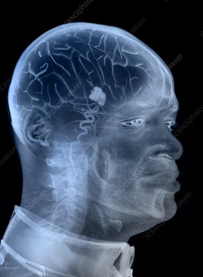 Brain tumour, composite X-ray