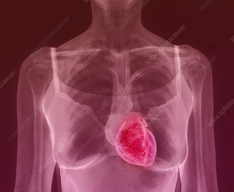Woman's heart, composite X-ray
