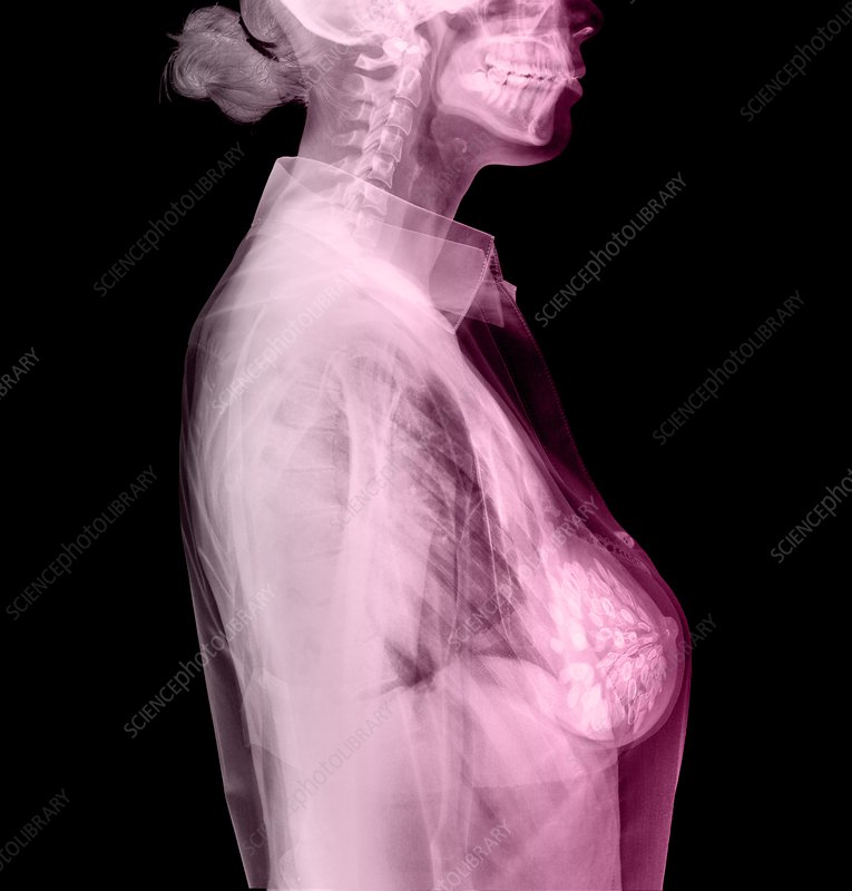Breast cancer awareness, conceptual image