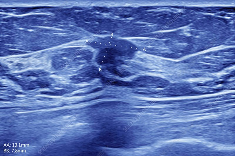 Breast cancer, ultrasound scan