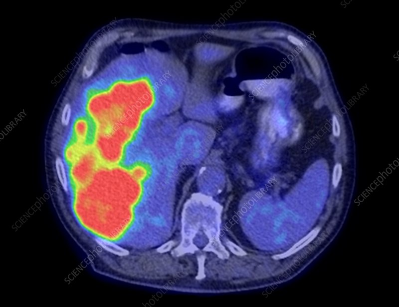 Secondary liver cancer, CT and PET scan