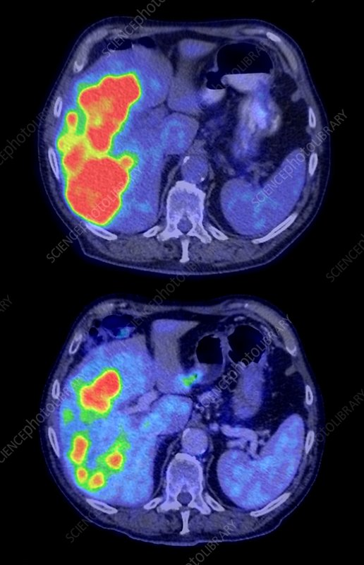 Secondary liver cancer with treatment, CT and PET scan