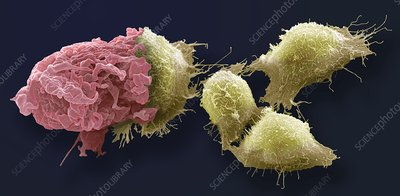 Macrophage and cancer cells, SEM