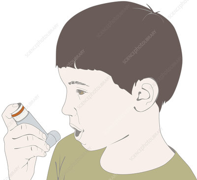 Child using an inhaler, illustration