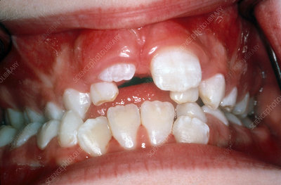 Crowded Teeth in Child