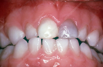 Discolouration of Teeth after Trauma