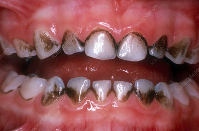 Teeth Stained from Iron Supplements