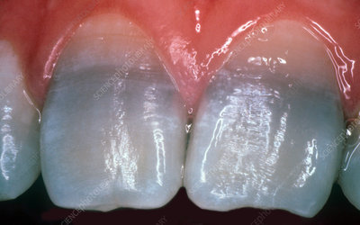Teeth Stained from Tetracycline