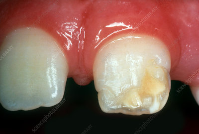 Injury to Primary Central Incisor