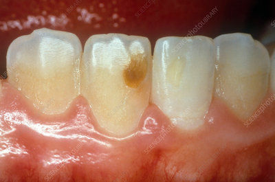 Tooth Discolouration from Previous Trauma