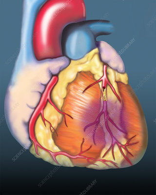 Myocardial infarction, illustration