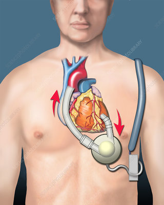 Ventricular Assist Device, illustration