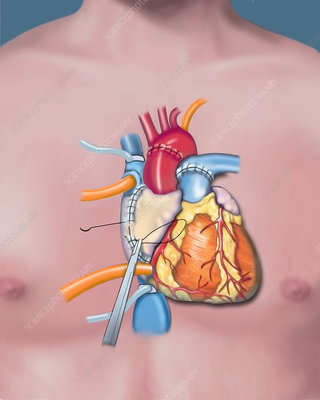 Heart transplant, completion of right atrium