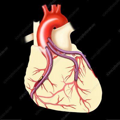 Coronary bypass, illustration