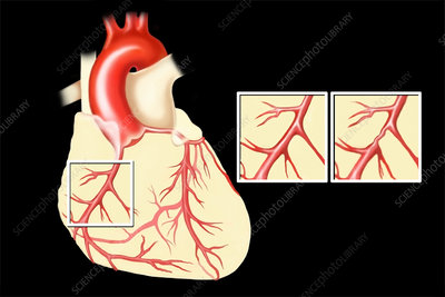Heart, normal vs. coronary artery disease vessels