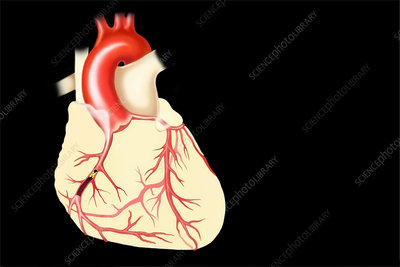 Coronary artery disease, illustration
