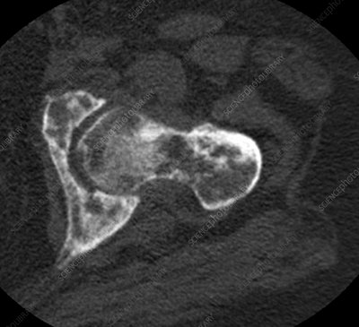 Metastases in hip, CT scan