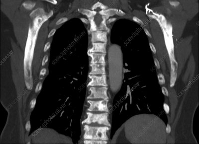 Metastases in spine, CT scan