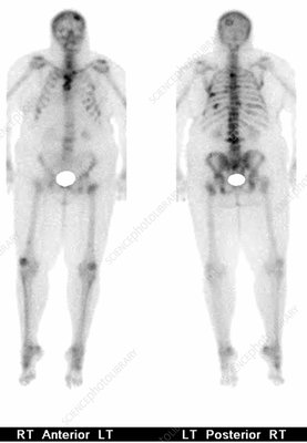 Metastatic cancer, bone scan