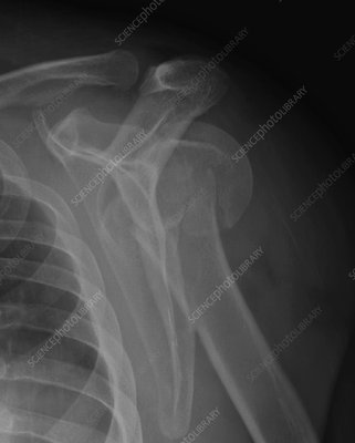 Fractured humerus subluxation of humeral head, X-ray