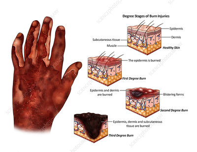 Degree Stages of Burn Injuries, illustration