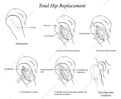 Total Hip Replacement, illustration