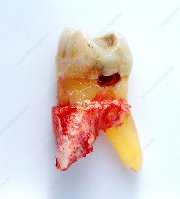 Molar with Large Side Cavity