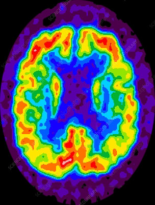 Alzheimer's, PET scan
