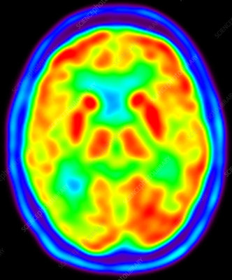 Normal brain, PET scan