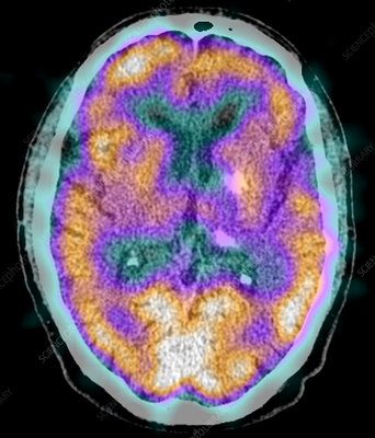 Normal brain, SPECT CT scan
