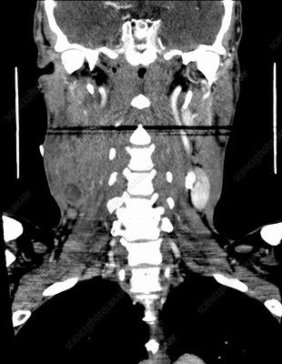 Tongue cancer, CT scan