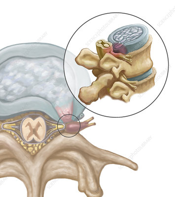 Herniated Disk, illustration