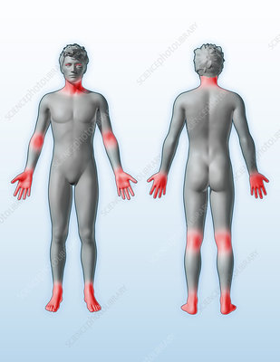 Atopic Dermatitis Locations, illustration