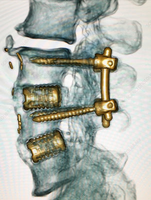 Spinal Instrumentation from 3D CT Scan