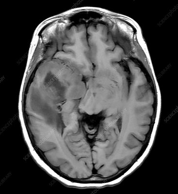 Glioblastoma Temporal Lobe, MRI