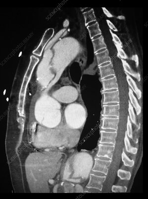 Aortic Dissection, CTA
