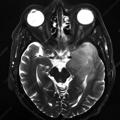 Anaplastic Astrocytoma of Temporal Lobe, MRI