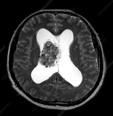 Central Neurocytoma, MRI