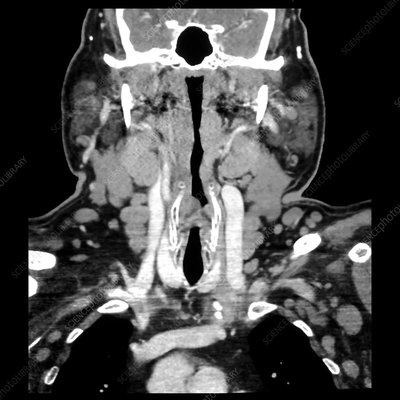 Neck with Chronic Lymphocytic Leukaemia (CLL), CT
