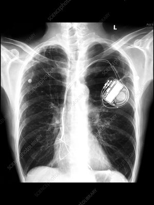 Emphysema, Pacemaker, X-ray