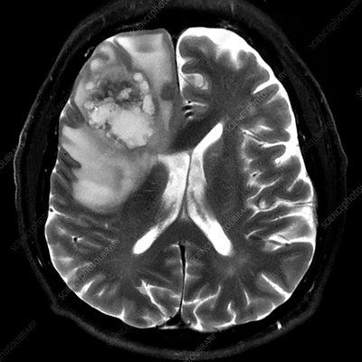 Frontal Lobe Glioblastoma, MRI
