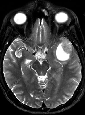 Melanoma Metastatic to Brain, MRI