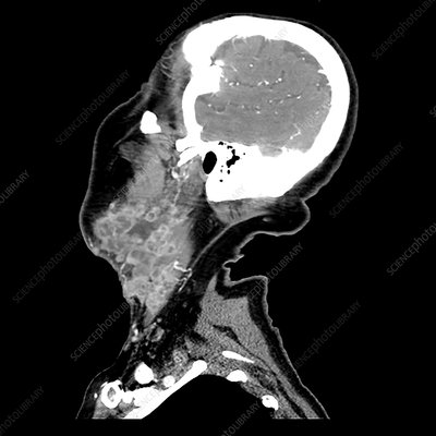 Melanoma Metastatic to Cervical Lymph Nodes, CT