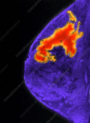 Breast Cancer, MRI