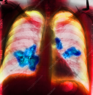 Lung Cancer, Chest X-Ray