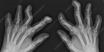 Psoriatic Arthritis, X-ray