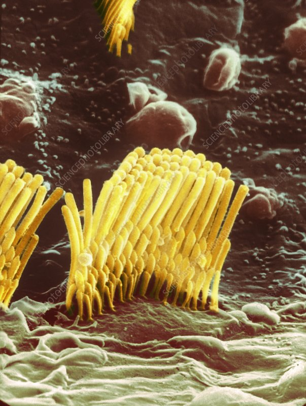 Human ear hair cell, SEM