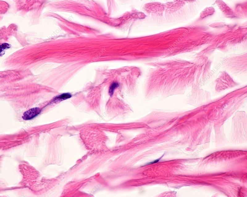 Skin collagen fibres, light micrograph